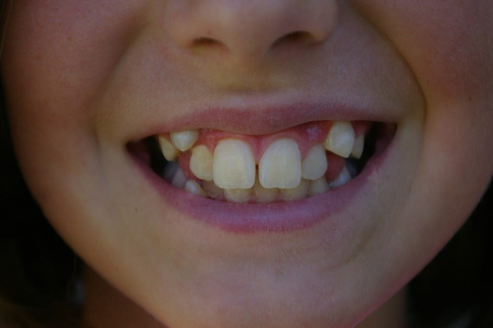 person who needs orthodontic treatment