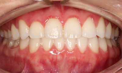 After Picture – Dunn Orthodontics patient