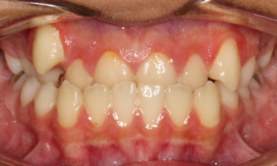 Before Picture – Dunn Orthodontics patient